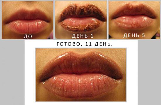 Как выглядят губы после татуажа