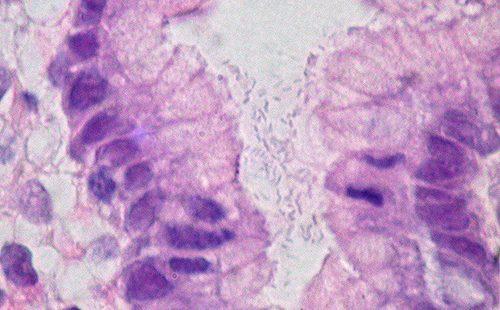 Вредоносный микроб живёт в желудке